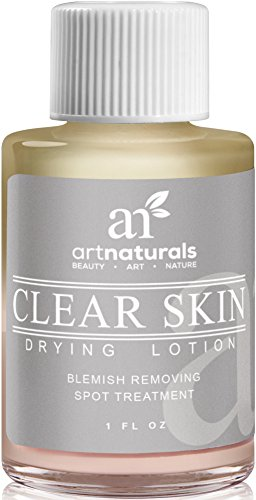 Art Naturals Clear Skin Drying Lotion 1fl oz –